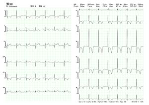 BriteMED 12-Lead Portable ECG